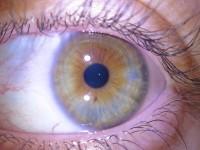 oeil mixte
